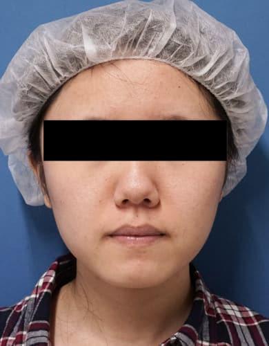 脂肪吸引(ホホ・アゴ下) 1か月半後のBefore写真