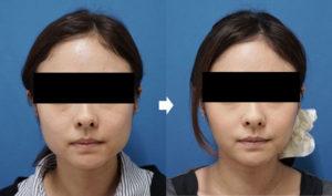 エラボトックス症例写真