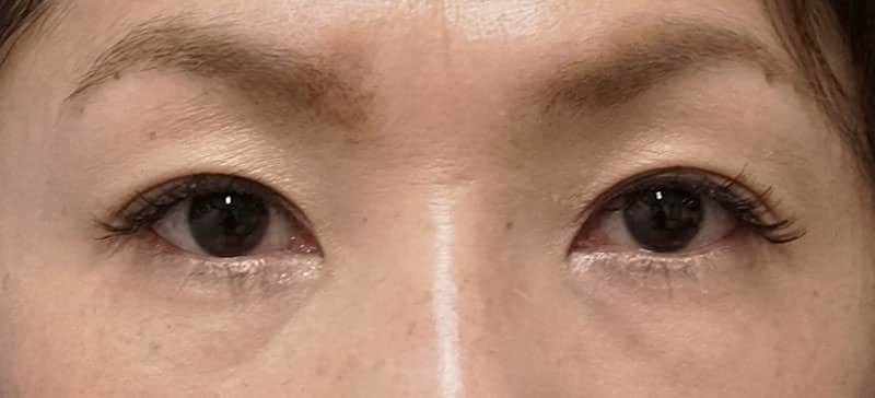 切らない眼瞼下垂プレミアム 3ヶ月後のAfterの写真