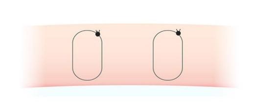 二重埋没法(2点止め)の図
