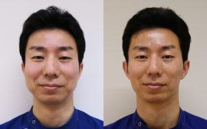 強力小顔ボトックス3ヶ月後