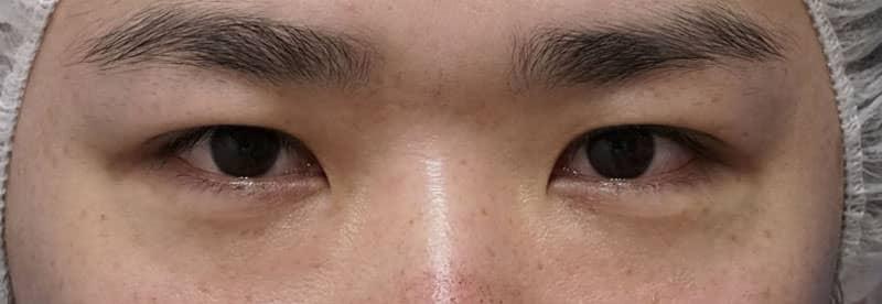 下眼瞼下制 1ヵ月後のBefore写真