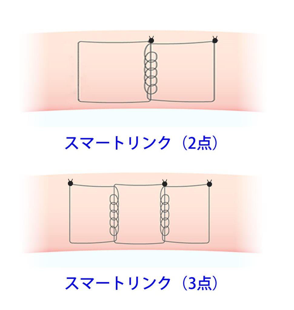 二重埋没法(スマートリンク)のかけ方