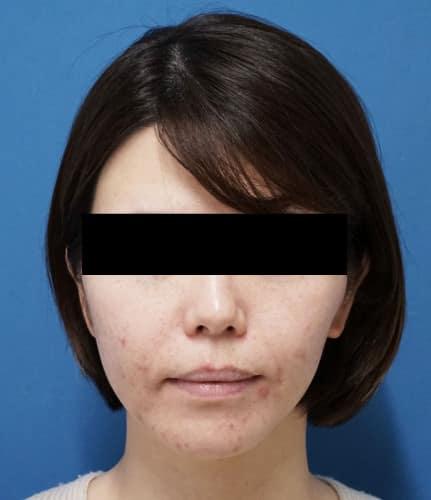 ミントリフトミニ10本 手術直後のBefore写真