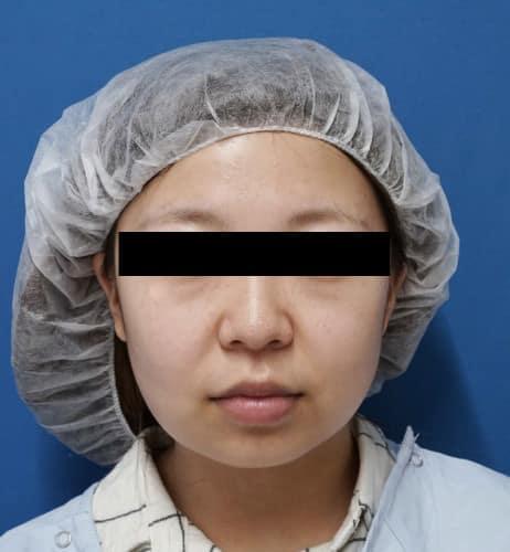 ホホ・アゴ脂肪吸引、強力小顔ボトックス 1ヵ月後のBefore写真