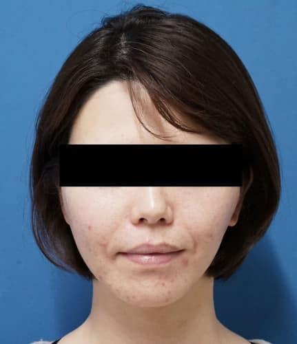 ミントリフトミニ10本 手術直後のAfterの写真