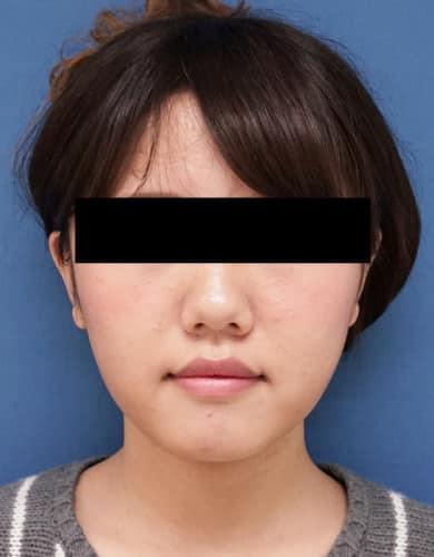 脂肪吸引(ホホ・アゴ下) 1か月半後のAfterの写真