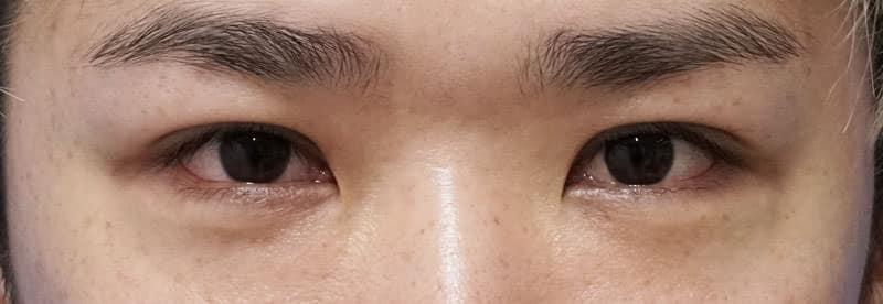 下眼瞼下制 1ヵ月後のAfterの写真