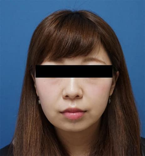 ホホ・アゴ脂肪吸引、強力小顔ボトックス 1ヵ月後のAfterの写真