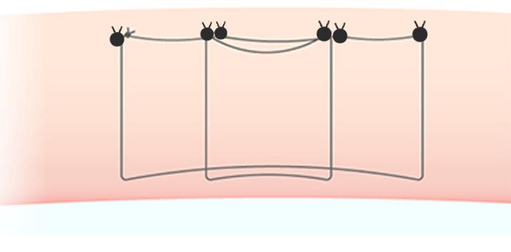 マルティプルノット法