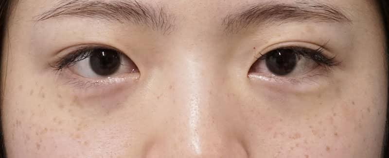 目の下脂肪とり 手術直後、1週間後のAfterの写真