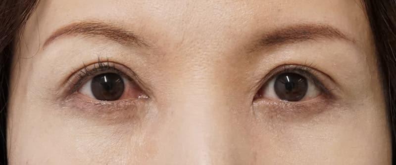 切らない眼瞼下垂プレミアム 1週間後のAfterの写真