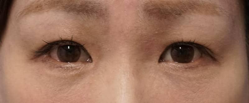 下眼瞼下制、目の下の脂肪とり 1ヶ月後のAfterの写真