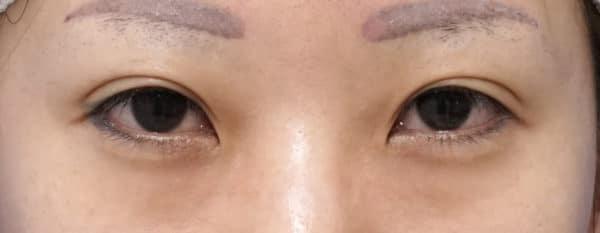 目尻切開、目頭切開(リドレープ法)  手術直後のBefore写真