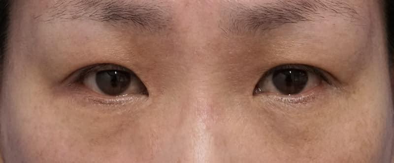 下眼瞼下制、目の下の脂肪とり 1ヶ月後のBefore写真