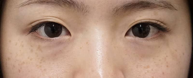 目の下脂肪とり 手術直後、1週間後のBefore写真