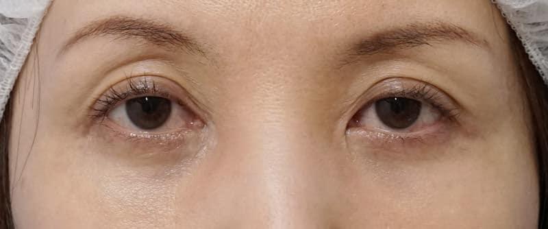 切らない眼瞼下垂プレミアム 1週間後のBefore写真