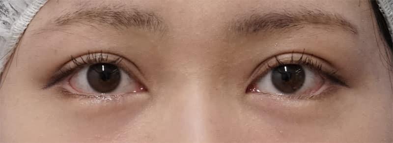 下眼瞼下制、目の下脂肪とり 1ヶ月後のAfterの写真