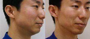 強力小顔エラボトックス-症例写真2か月半後 右ナナメ
