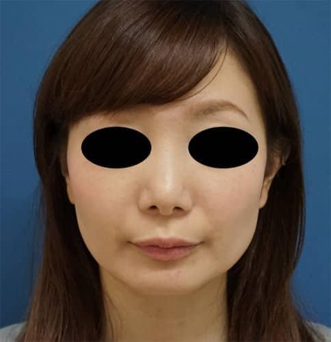 鼻尖形成3D法、軟骨移植 3ヵ月後のAfterの写真
