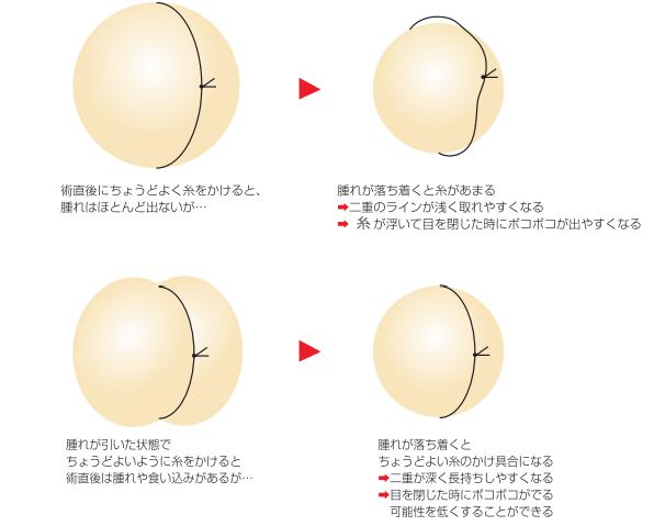 腫れがある時と腫れが引いた時の糸のイメージ