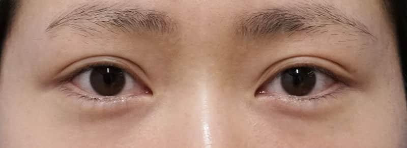 下眼瞼下制、目の下脂肪とり 1ヶ月後のBefore写真