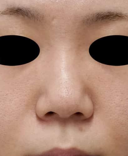 鼻尖形成(3D法)、軟骨移植 5日後のBefore写真