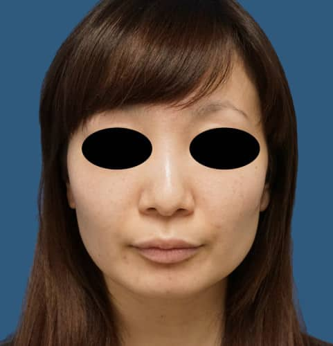 鼻尖形成3D法、軟骨移植 3ヵ月後のBefore写真