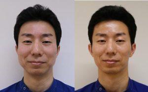 強力小顔エラボトックス-症例写真2か月半後