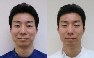 強力小顔エラボトックス-症例写真1か月後
