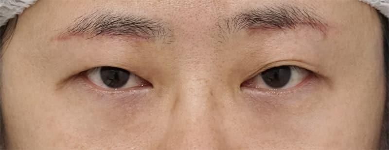 眉下切開 1ヶ月後のAfterの写真