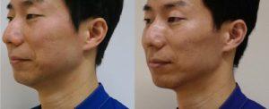 強力小顔エラボトックス-2か月半後 左ナナメ