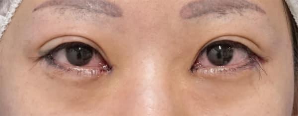 目尻切開、目頭切開(リドレープ法)  手術直後のAfterの写真