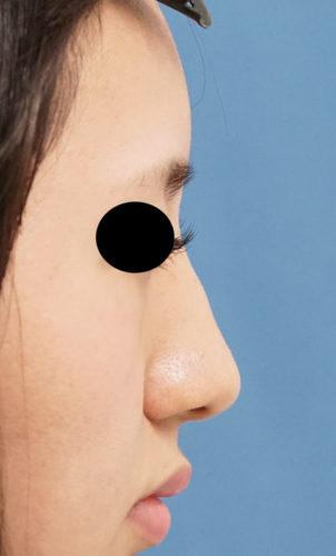 クレヴィエル(鼻背・鼻根) 右側面 処置前