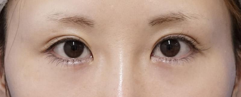 切らないデカ目2点セット(切らない眼瞼下垂+切らないタレ目) 手術前