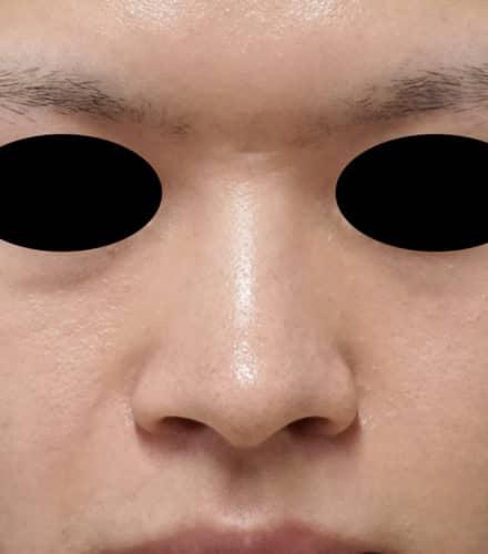 小鼻縮小(内側法、フラップ法)、I型鼻根プロテーゼ 1週間後のBefore写真