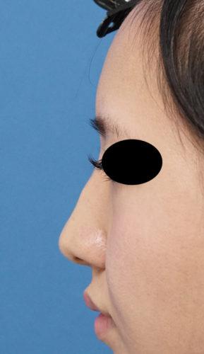 クレヴィエル(鼻背・鼻根) 左側面 処置前