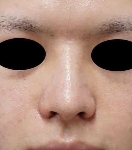 小鼻縮小(内側法、フラップ法)、I型鼻根プロテーゼ 1週間後のAfterの写真