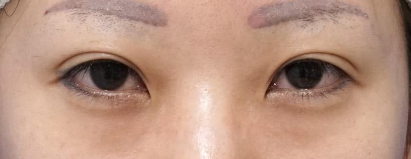 目尻切開、控えめ目頭切開(リドレープ法) 手術前