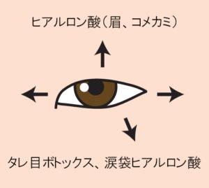 目を上下左右に大きくする(プチ整形)
