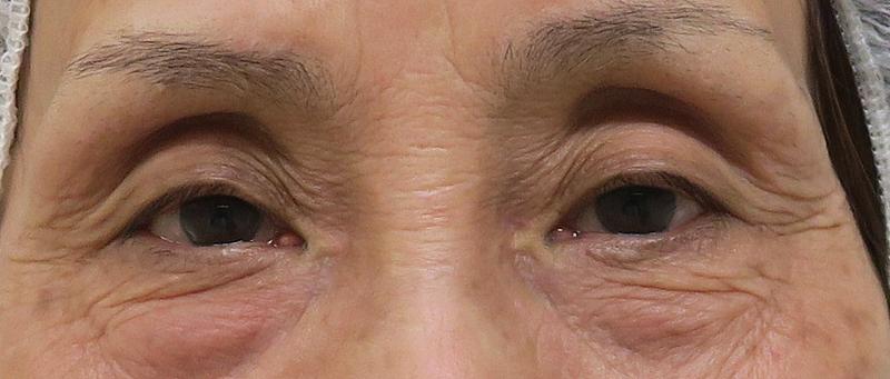 コンデンス脂肪注入(目の上、目の下)、脂肪とり後のBefore写真