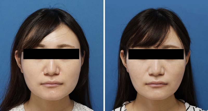 BNLS 10cc  2回 施術前後の症例写真