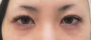 切らない眼瞼下垂処置前