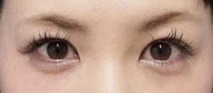切らない眼瞼下垂処置後