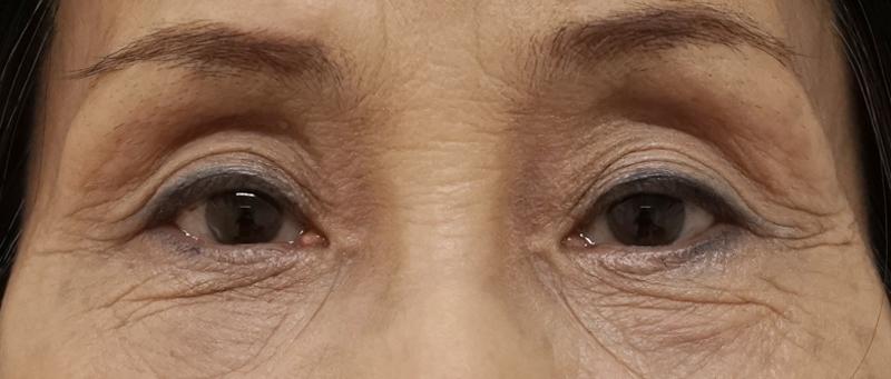 コンデンス脂肪注入(目の上、目の下)、脂肪とり後のAfterの写真