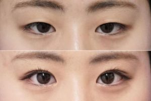 二重で目を大きく-二重症例写真2