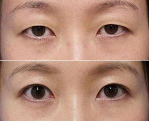 二重で目を大きく-二重症例写真1