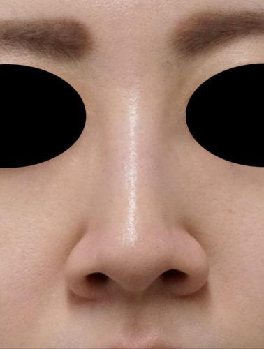 小鼻縮小(フラップ法) 正面 手術前