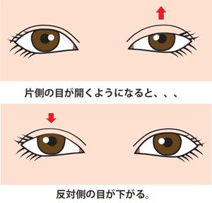 片目の眼瞼下垂が改善するともう片方が下がる(へリングの法則)