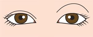 目の上のくぼみの左右差